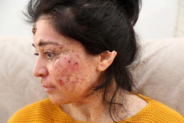 Cilt kanserine yakalanan Sibel Oflas'ın hastalığını fırsata çevirmek istediler