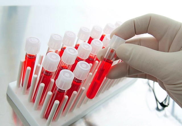 Hangi kan grubundakiler hangi hastalıklara yakalanıyor? İşte o liste...