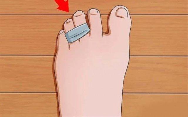 Ayakkabınıza poşet çay koyarsanız bakın ne olur?