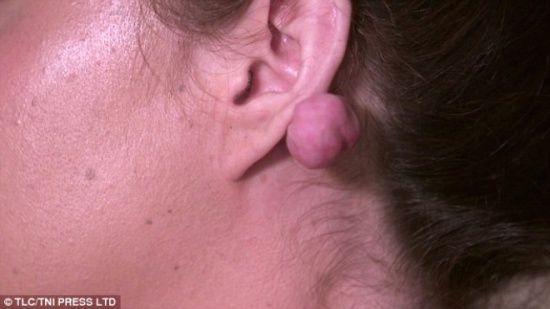 Sadece kulaklarını deldirmek istemişti, feci bir olay yaşadı