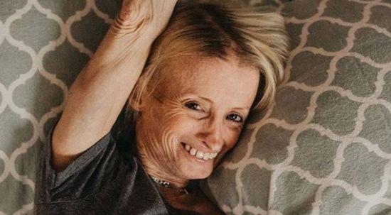 Kimse gerçek yaşına inanmıyor! Yaşlılık hastalığı yüzünde adım adım ölüme gidiyor