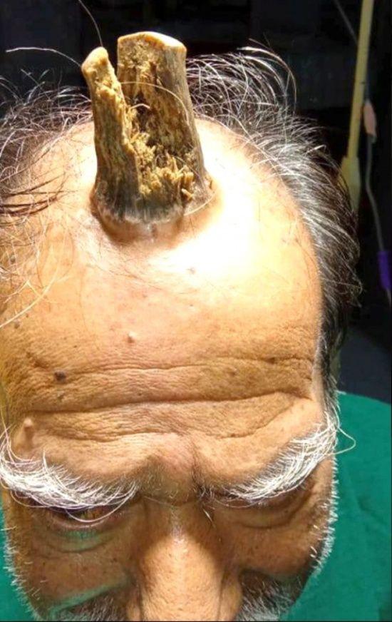 Başını çarptıktan sonra filizlendi, 5 yılda bu hale geldi!