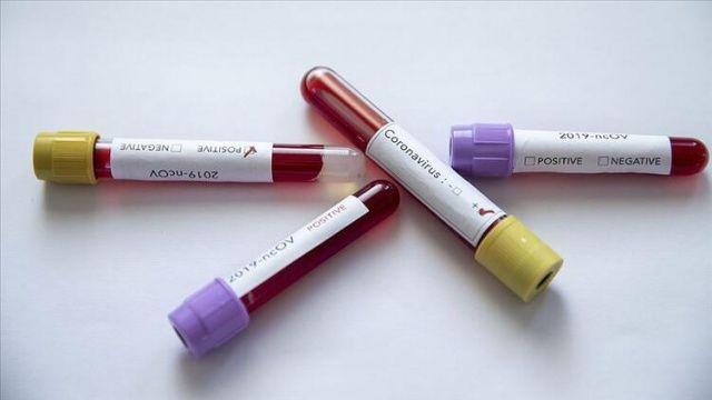 Koronavirüs ile mücadeleden 3 iyi haber!