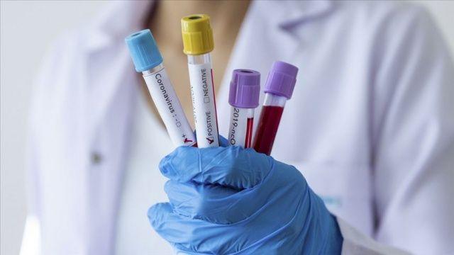 Futbol takımında 12 oyuncu, 3 antrenör ve 1 masörün koronavirüs testleri pozitif çıktı