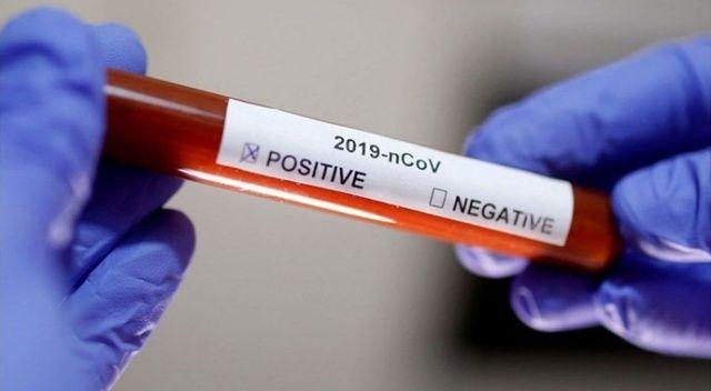 Bilimsel araştırma: Her 100 pozitif vakadan 86'sında semptom görülmedi