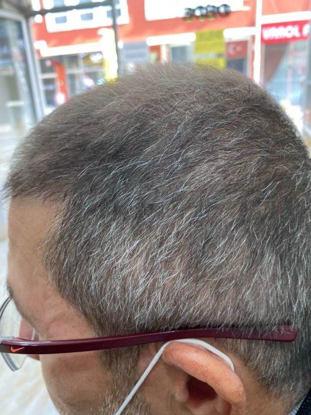 15 yıl kel gezdi, bir anda saçları çıktı