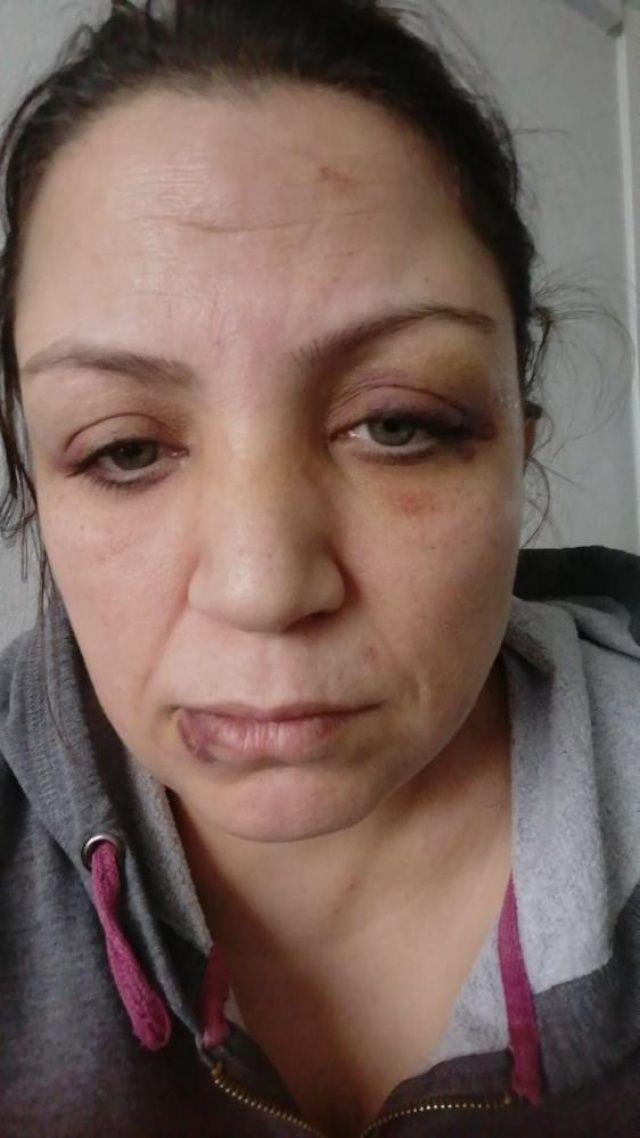 7 kişi bir olup kadın dövdüler, sebebi ise 'pes artık' dedirtti