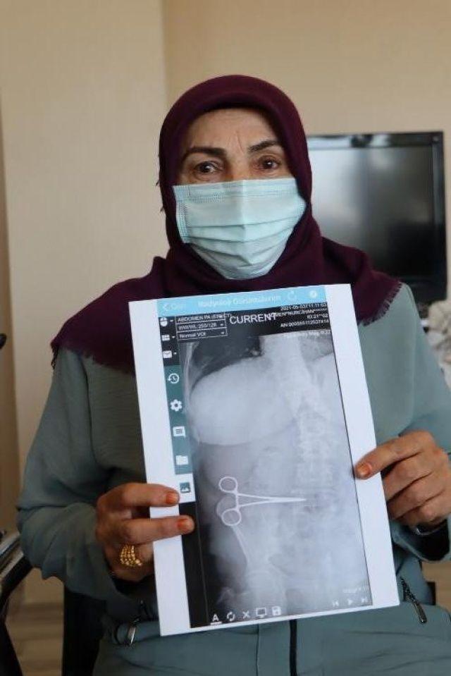 Mide ameliyatı olan kadın hayatının şokunu yaşadı