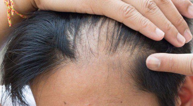 Tıraşsız saç ekimi DHI hakkında merak edilenler