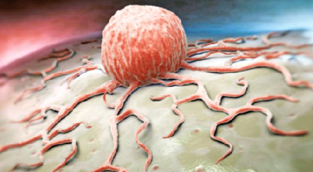 kanser ile ilgili görsel sonucu