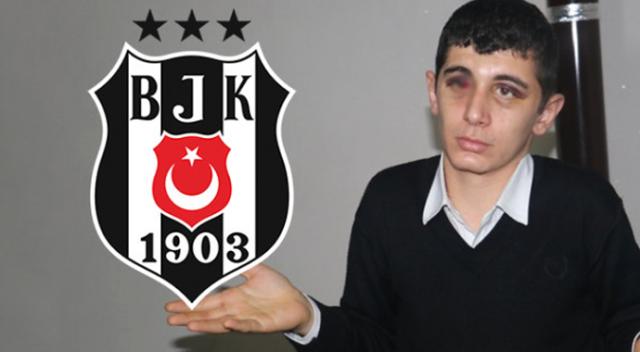 Beşiktaş'tan saldırıya uğrayan engelli gence davet