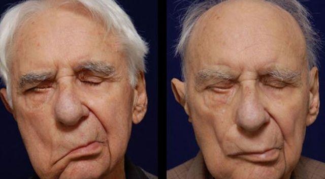 Yüz Felci Nedir? | Yüz Felci Nasıl Tedavi Edilir ve Nasıl Anlaşılır?