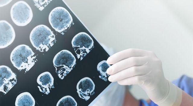 Epilepsi hastalarına sıcak hava uyarısı