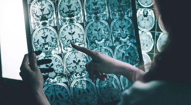 Alzheimer beyne 25 yıl öncesinde yerleşiyor! İşte Azheimer'dan korunmanın yolları