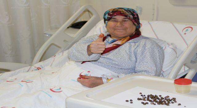 17 yıldır karın ağrısı çeken kadının safra kesesinden 86 parça taş çıkarıldı