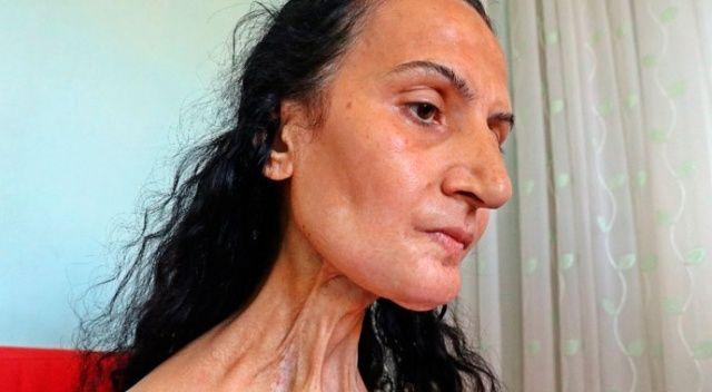 Kansere yakalanan kadına bacağından yeni dil yapıldı!