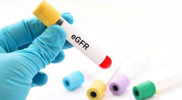 EGFR nedir? | EGFR değeri kaç olmalıdır? | EGFR'de normal değerler