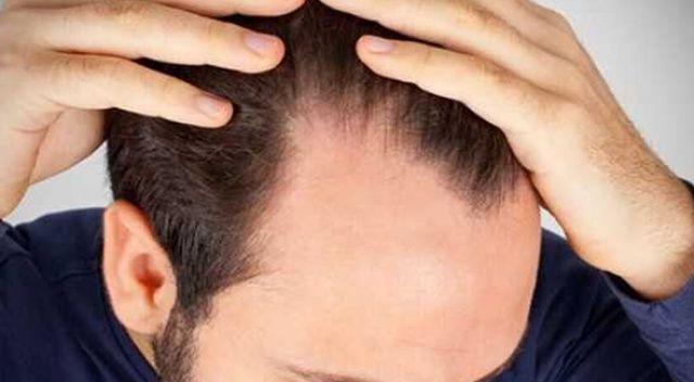 Saç dökülmesi yaşayanlar dikkat!