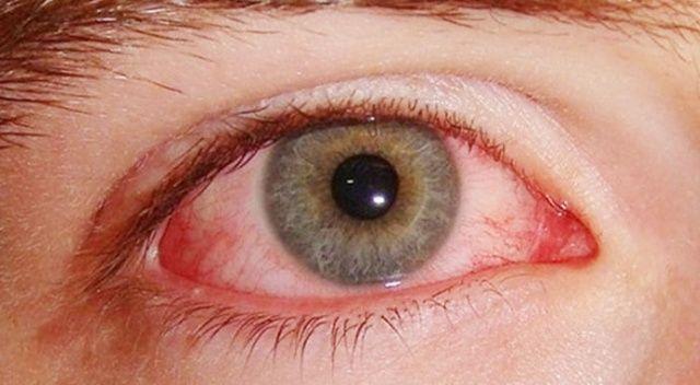 Göz kanlanması göz tümörü habercisi olabilir