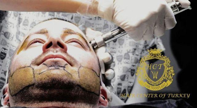 Hair Center of Turkey'de ağrısız ve tıraşsız saç ekimi ayrıcalıklarını yaşayın