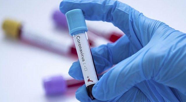 KKTC'de koronavirüs vaka sayısı 47'ye yükseldi