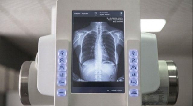 Yerli üretim röntgen makinesi göreve hazır