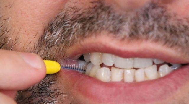 Diş hekimlerinde işler yüzde 50'den fazla düştü