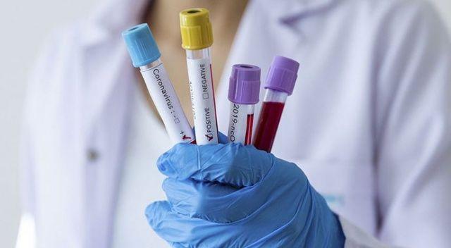 Karabük'te koronavirüsten ölenlerin sayısı 15'e yükseldi