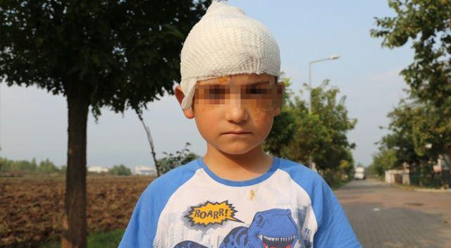 Sokak ortasında kangal dehşeti! Yaralanan çocuğun başına 52 dikiş attılar
