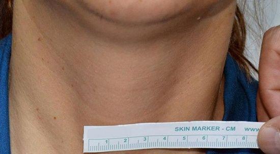 Koronavirüsle birlikte ağrılı tiroit hastalığı arttı