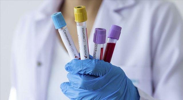 Türkiye'de son 24 saatte 11.479 koronavirüs vakası tespit edildi