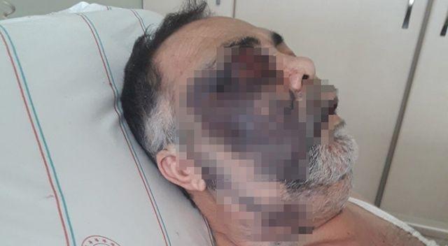 Engelli adamın darp sonrası ölümüne ikinci tutuklama