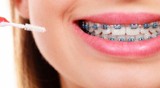 Maskeli yaşam ortodontik tedaviye ilgiyi arttırdı