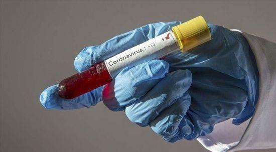 Sağlık Bakanlığı duyurdu: Koronavirüs rehberine iki yeni madde eklendi
