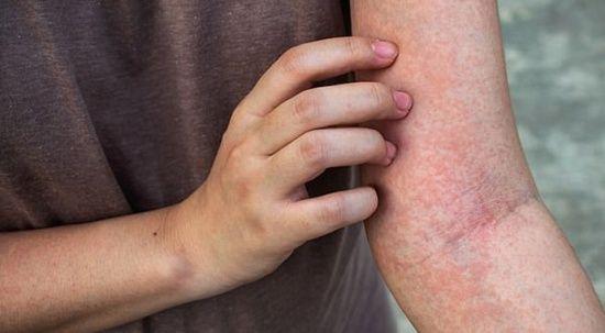 Egzamaya sıra dışı tedavi: Cilt bakterileri