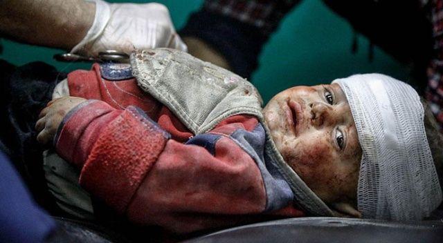 Suriye'de yaralanan çocuklar Türkiye'de tedavi ediliyor