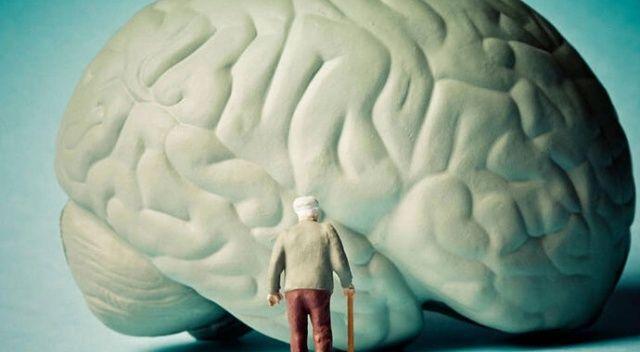 Alzheimer ilacına onay