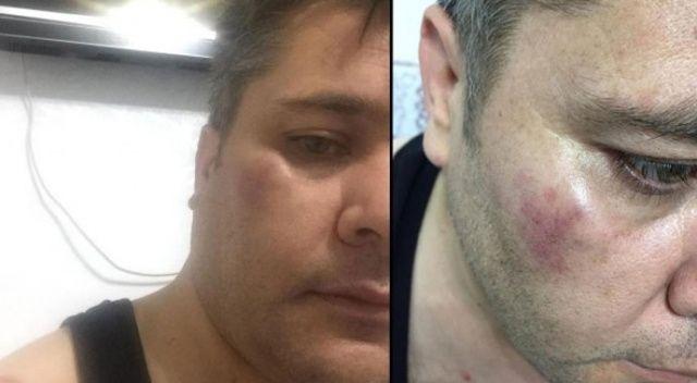 İHA Muhabirine çirkin saldırı: Yüzüne sert bir cisimle vuruldu, dişi kırıldı