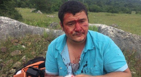 İHA muhabirine saldıran 4 şüpheliden biri tutuklandı