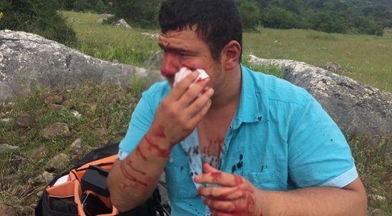Saldırıya uğrayan muhabir dehşeti anlattı