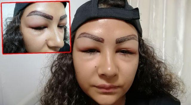 Reklam yüzü olmak için gitti, yüzünden oldu