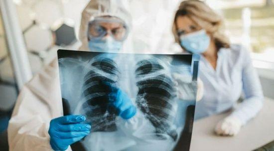 Covid-19'u ağır geçiren gençlerin yüzde 40'ında organ hasarı oluştu