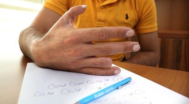 """Konya'da yapılan """"parmak nakli"""" literatüre girdi"""