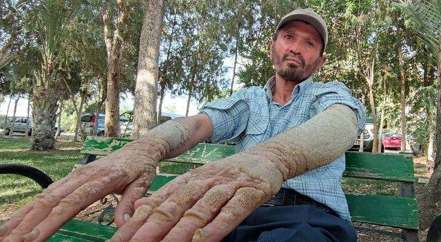 Minik bir yara ile başlayan kabus 26 yıldır peşini bırakmadı
