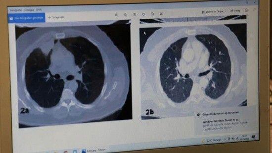 Covid tedavisi gördü, hem kanseri hem virüsü atlattı