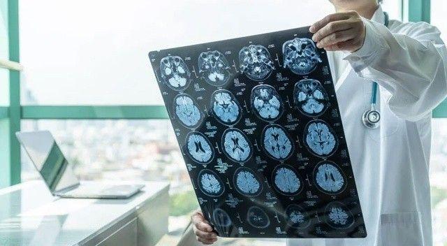 Demans ve felce karşı laboratuvarda mini beyinler üretiliyor